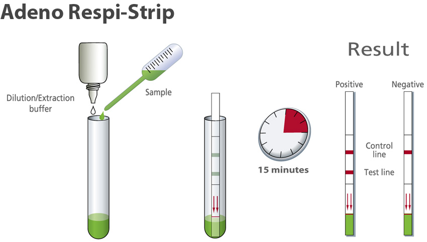 Adeno Respi-Strip